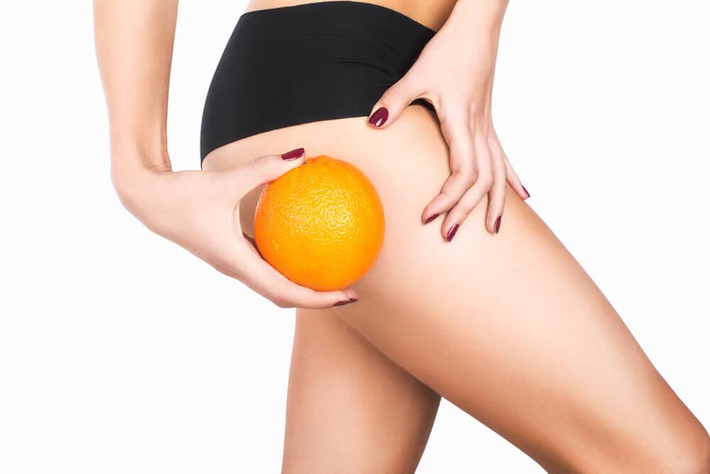 Eliminare la cellulite: integratori naturali e buone abitudini